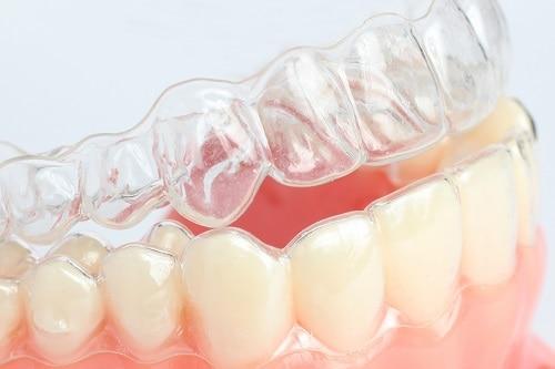 clear aligner on teeth